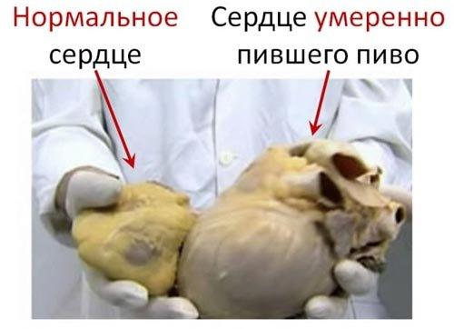 Нормальное сердце и сердце